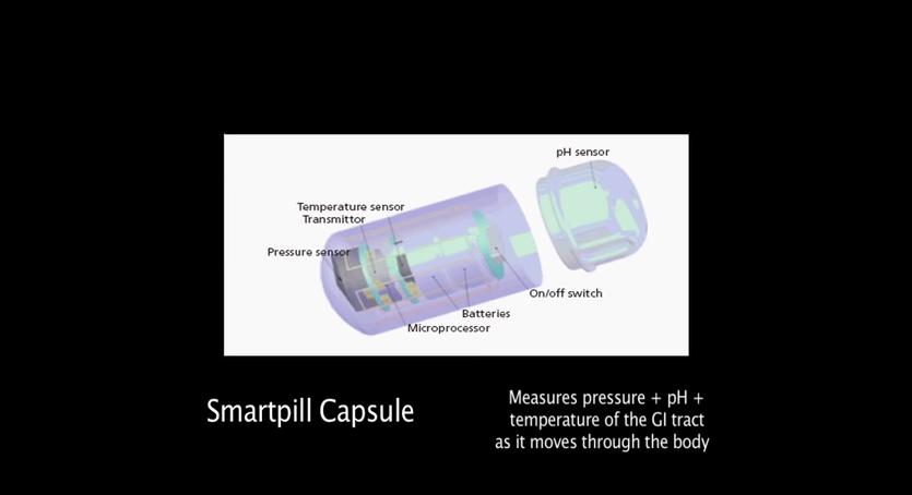 smartpill capsule