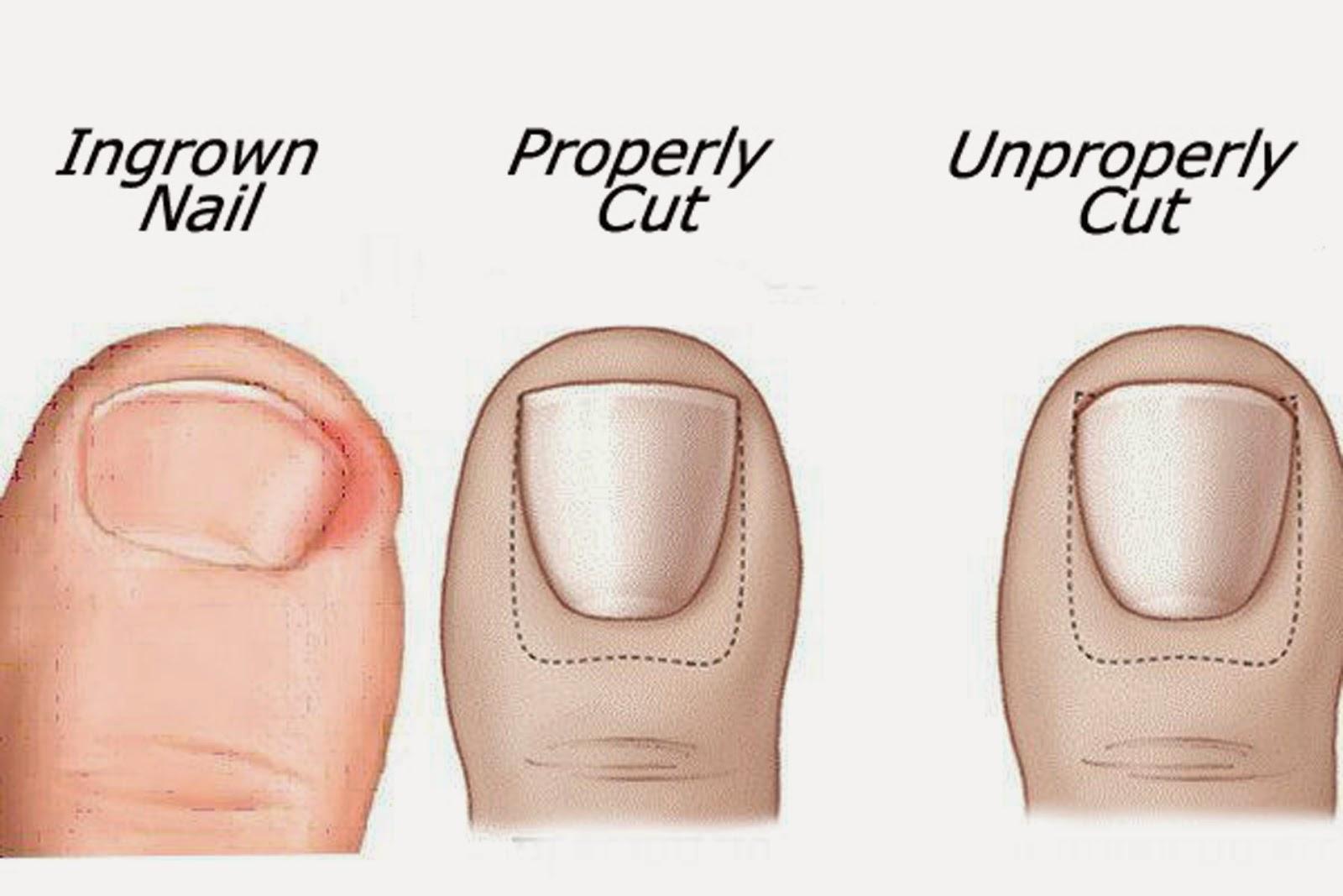 Ingrown-nail