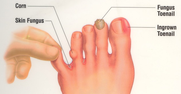 An Ingrown Nail Occurs When The Instead Of Growing Over Flesh Grows Into It Often Affects Toenails And In Most Cases Toe
