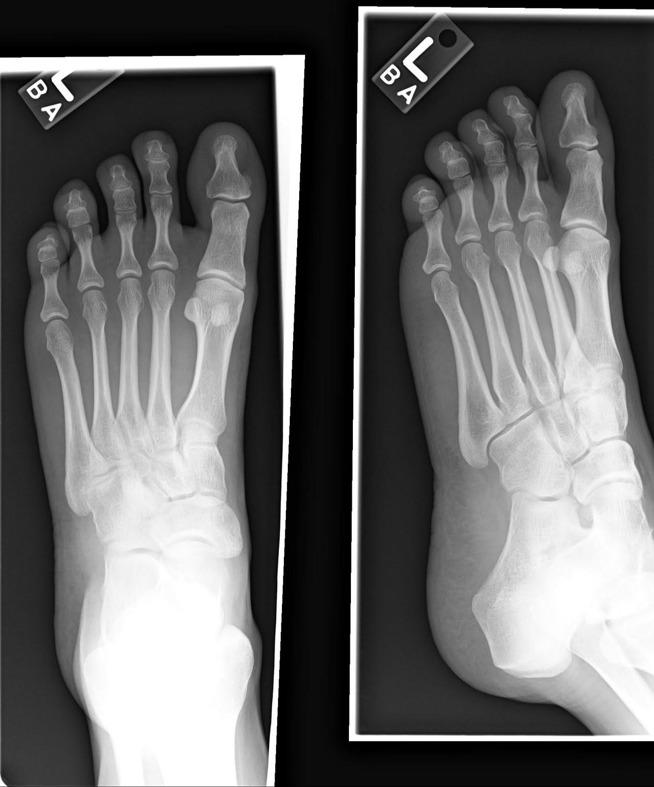 foot xray 1
