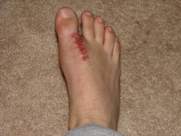 2006-foot-surgery-November-25-1