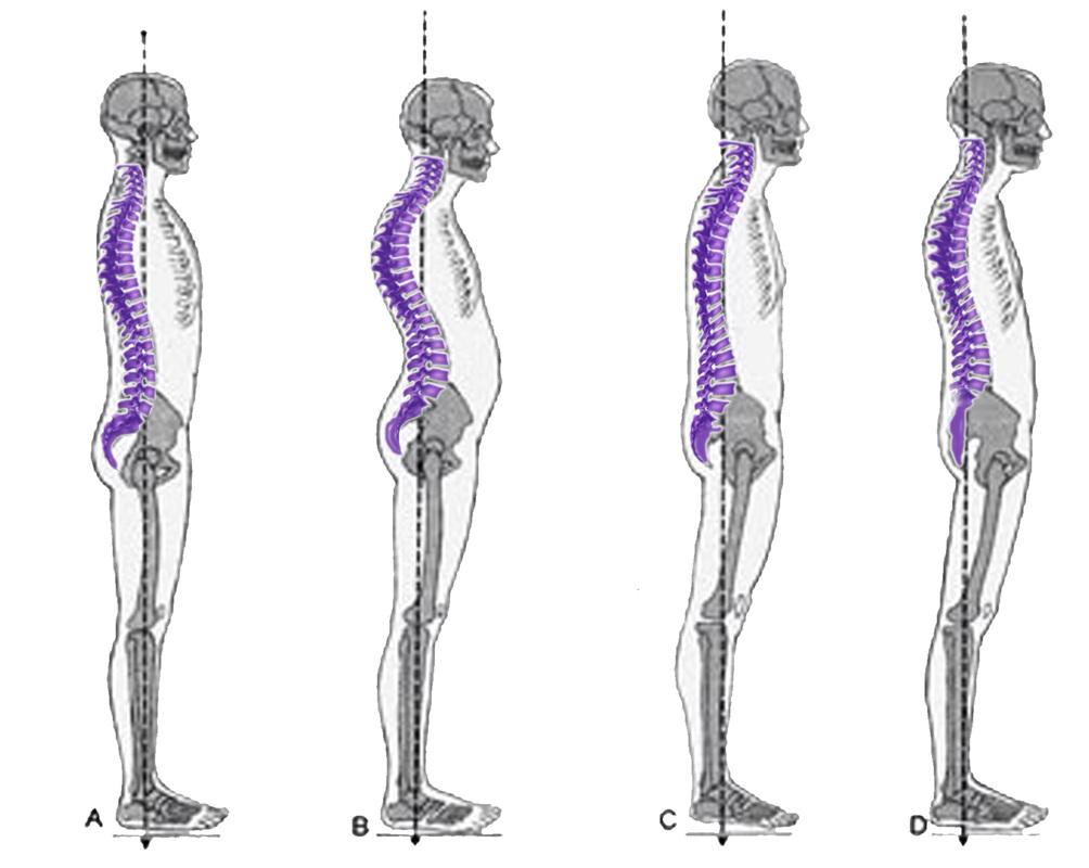 posture 1